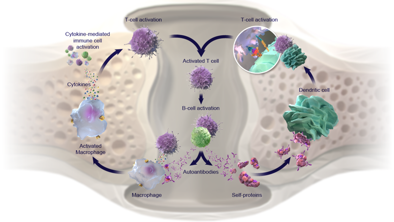 Rethinking the Role of Pathogenic Drivers in Rheumatoid Arthritis